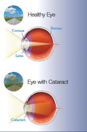 cataract1